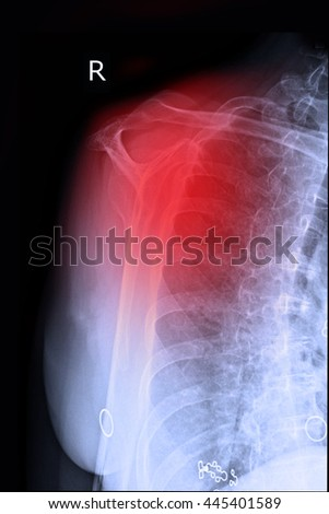 Xray right shoulder and pain and frozen shoulder - stock photo