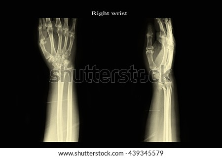 xray right wrist : show fracture