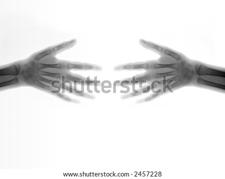 XRay Series - Illustrations depicting various human anatomy parts in various situations - stock photo