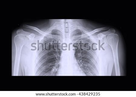 xray shoulder : frozen shoulder - stock photo
