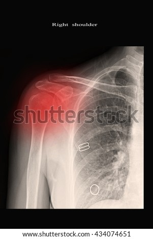 xray shoulder : frozen shoulder right - stock photo