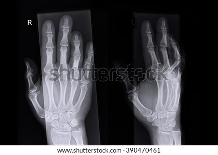 Xray show right hand abd fracture at ring finger right hand