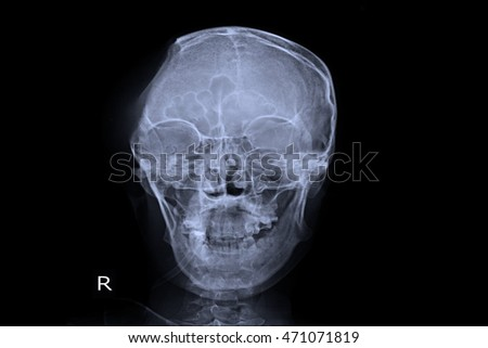 xray skull show post operation craniotomy