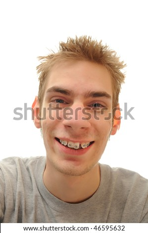 Young adult teenage man laughs over white background. He has his braces on for his teeth - stock photo