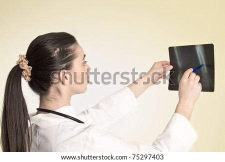 young and nice doctor watching a patient x-ray - stock photo