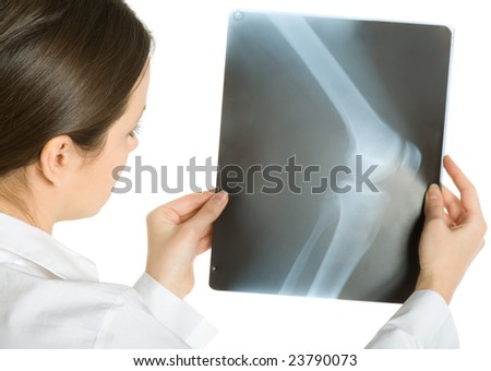 Young attractive female doctor looking x-ray photos of knee. Isolated on white