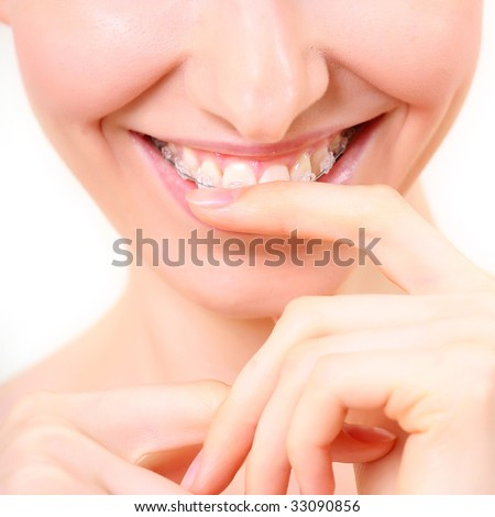 young beautiful woman with bracket, close up, isolated on a white background, please see some of my other parts of a body images - stock photo