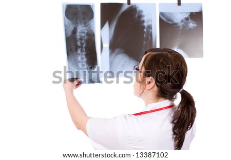 young female doc looking at one x-ray with other two on the wall - stock photo