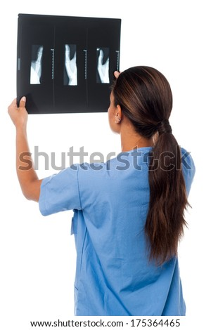 Young female doctor analyzing x-ray sheet of her patient - stock photo
