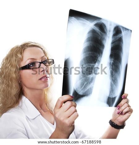 Young female doctor examining xray - stock photo