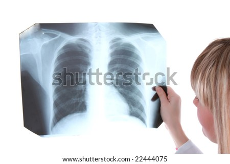 Young girl is looking to x-ray picture - stock photo