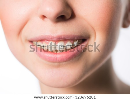 Young girl mouth with teeth braces - stock photo