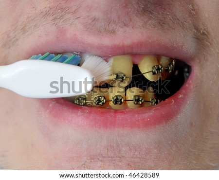 Young gross man brushes his dirty disgusting yellow crooked teeth with braces. Closeup image with detail. - stock photo