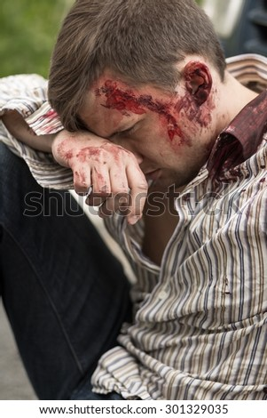 Young injured bloody man after car crash - stock photo
