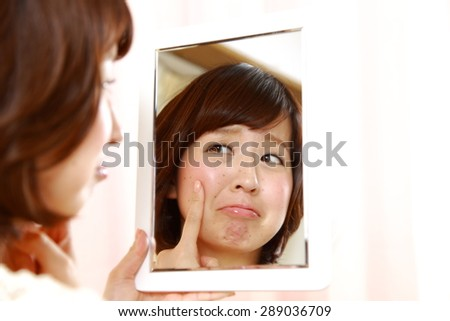 young Japanese woman worries about dry rough skin - stock photo