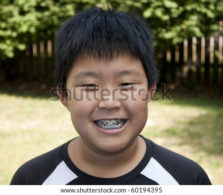 Young Korean boy smiling and showing his braces - stock photo