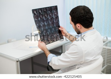 Young male physician reading and reviewing a MRI brain scan - stock photo