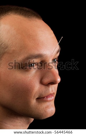Young man receiving acupuncture in his forehead