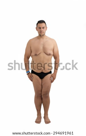 young man who lost weight and excess skin isolated on white - stock photo