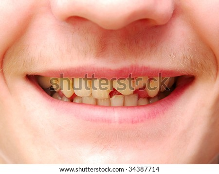 young man with a teeth broken and rotten