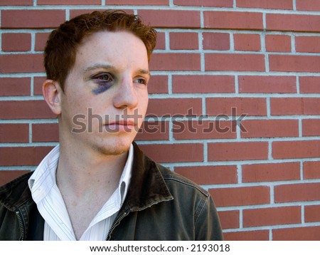 Young man with black eye that is starting to heal - stock photo