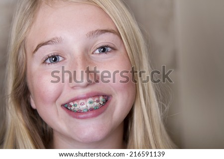 Young teen girl with braces on her teeth - stock photo