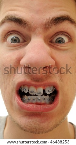 Young white causcasian man shows off his new braces on his pure white teeth. - stock photo