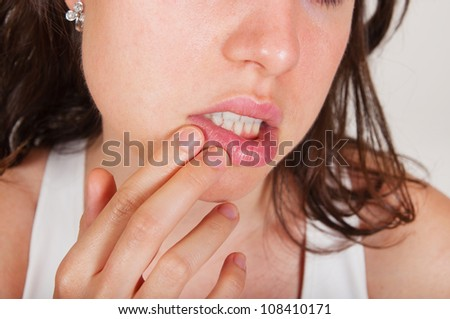 Young woman examining herpes in her face - stock photo