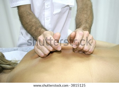 young woman getting chinese medicine treatment - stock photo
