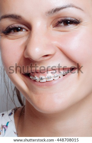 Young woman portrait with dental braces natural. Girl smiling cheerfully. concept of medicine and dentistry. beautiful white teeth.