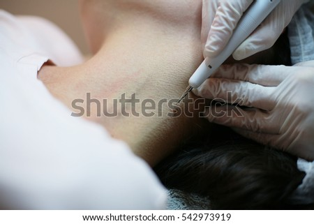 Young woman remove moles from the neck.