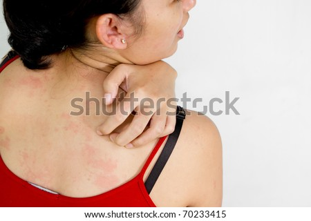 Young woman scratching her itchy back with allergy rash - stock photo
