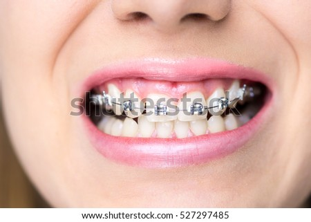 Young woman smiling after putting braces, dental procedure, making perfect smile