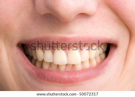 young woman with a teeth broken and rotten - stock photo