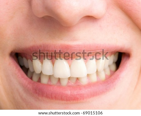 young woman with a teeth broken and rotten