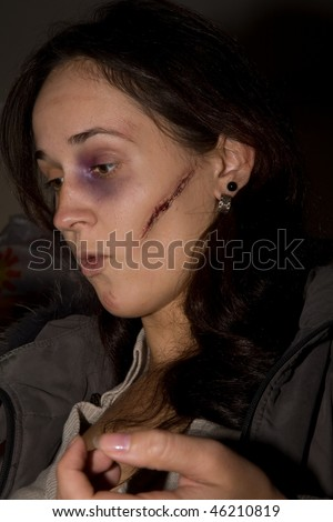 Young woman with fake cicatrice and bruise on her face - stock photo