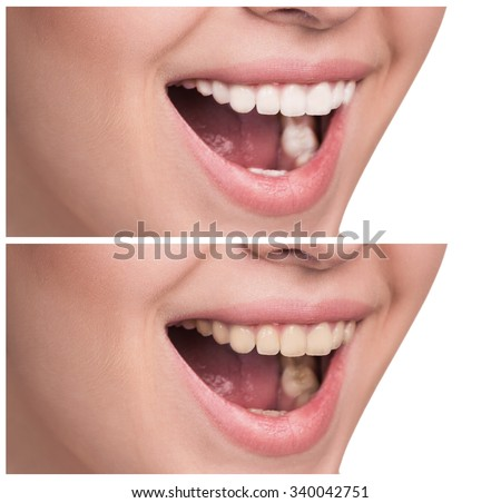 Young woman with healthy smile. Before, after concept