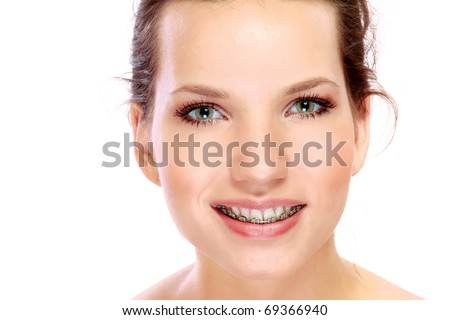 young womans smile with braces - stock photo