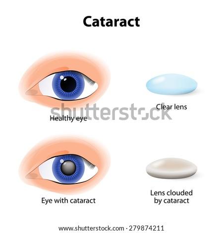 A cataract is an clouding crystalline lens inside the eye. - stock vector