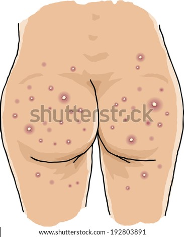 A naked bum covered in pimples. - stock vector