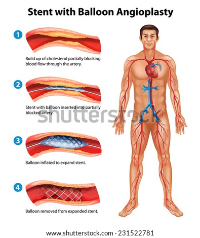 A stent angioplasty procedure - stock vector
