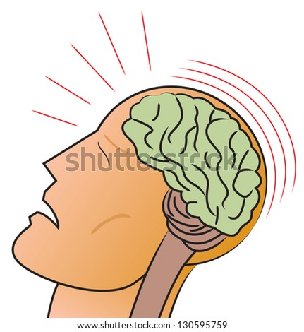 A stylized depiction of a man receiving a traumatic head injury or concussion. - stock vector
