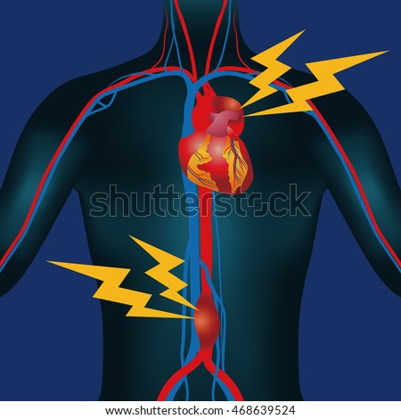 Abdominal Aortic Aneurysm Thoracic Aortic Aneurysm Stock Vector HD ...