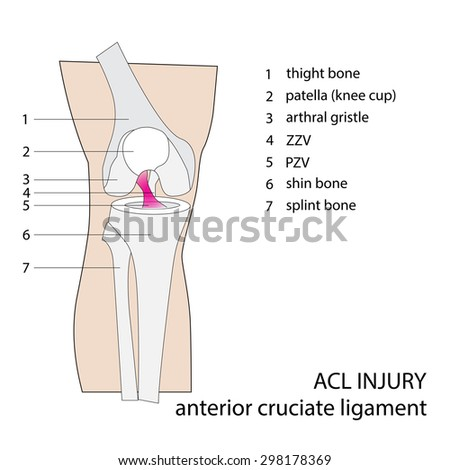 Vector Illustration Knee Anatomy Injuries Stock Vector 320771852 Shutterstock