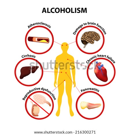 Alcoholism. Some of the possible long-term effects of alcohol an ...