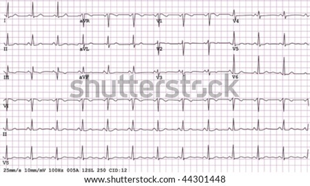 An example of a normal 12-lead sinus rhythm electrocardiogram,