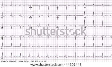 An example of a normal 12-lead sinus rhythm electrocardiogram, - stock vector