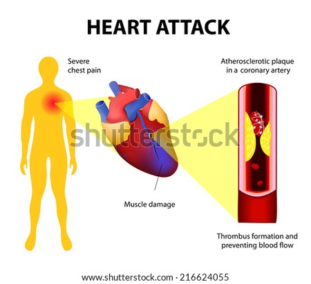 Anatomy of a heart attack. Diagram of a myocardial infarction. Atherosclerotic plaque in a coronary artery. Thrombus  totally occluding the artery and preventing blood. - stock vector