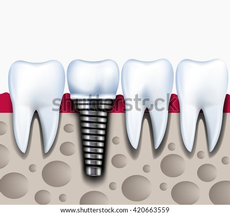 Anatomy of healthy teeth and dental implant in jaw bone. Healthy concept illustration. vector - stock vector