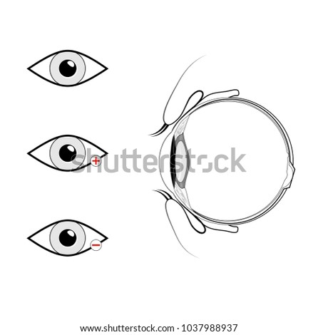 Anatomy human eye vertical section eye imagem vetorial de banco anatomy of the human eye vertical section of the eye and eyelids schematic diagram ccuart Gallery